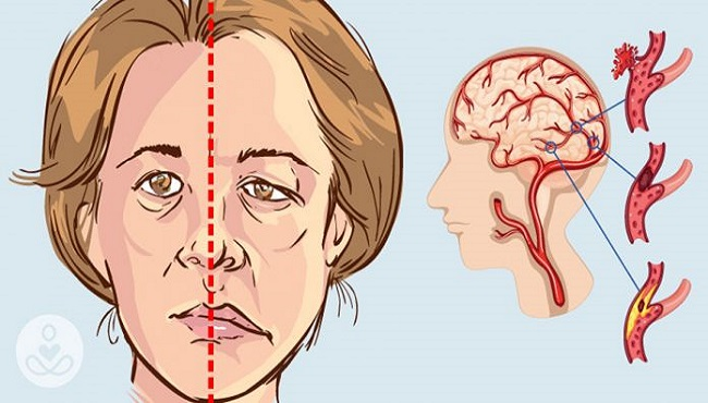 Biểu hiện tai biến mạch máu não như thế nào?