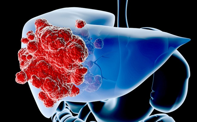 Các giai đoạn của bệnh ung thư gan