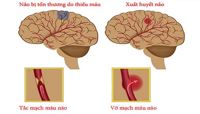 Các phương pháp điều trị tai biến mạch máu não