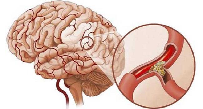 Cách điều trị tai biến mạch máu não