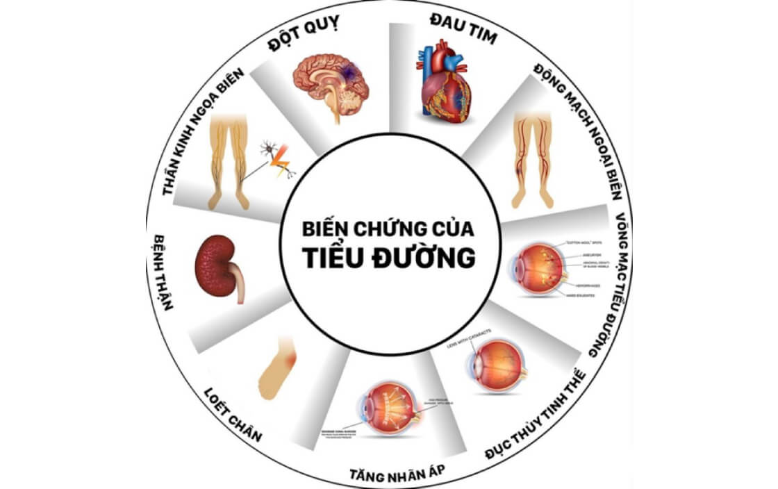 Hậu quả và những biến chứng thường gặp của bệnh tiểu đường