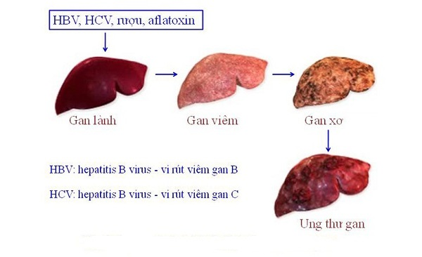 Nguyên nhân gây ra bệnh ung thư gan